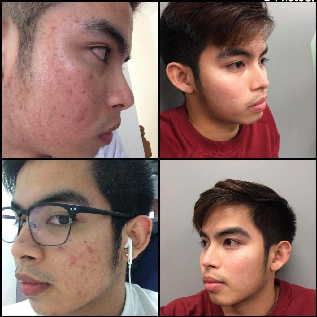 (No to Skin shaming) ACNE AWARENESS CAMPAIGN Shaming on People imperfections is just wrong.